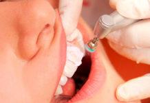 La importància d'una boca sana, Policlínic Simonet Reus