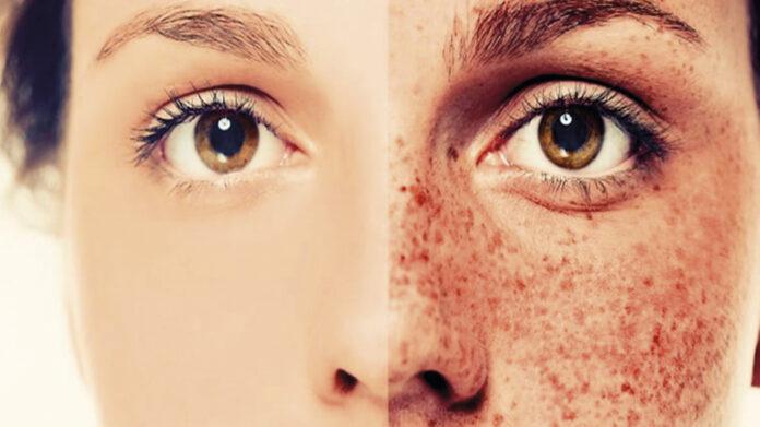 Origen i tractament de la hiperpigmentació